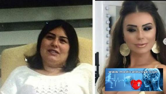 22'nci kez estetik ameliyatı oldu