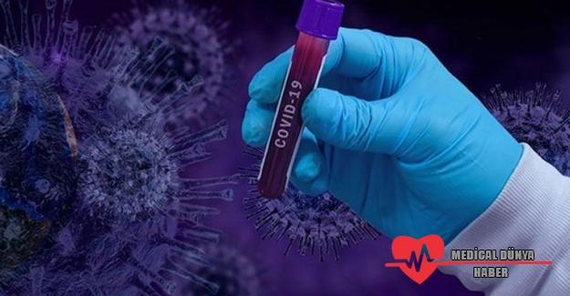 Çin aşısı Sinovac'la ilgili yeni gelişme
